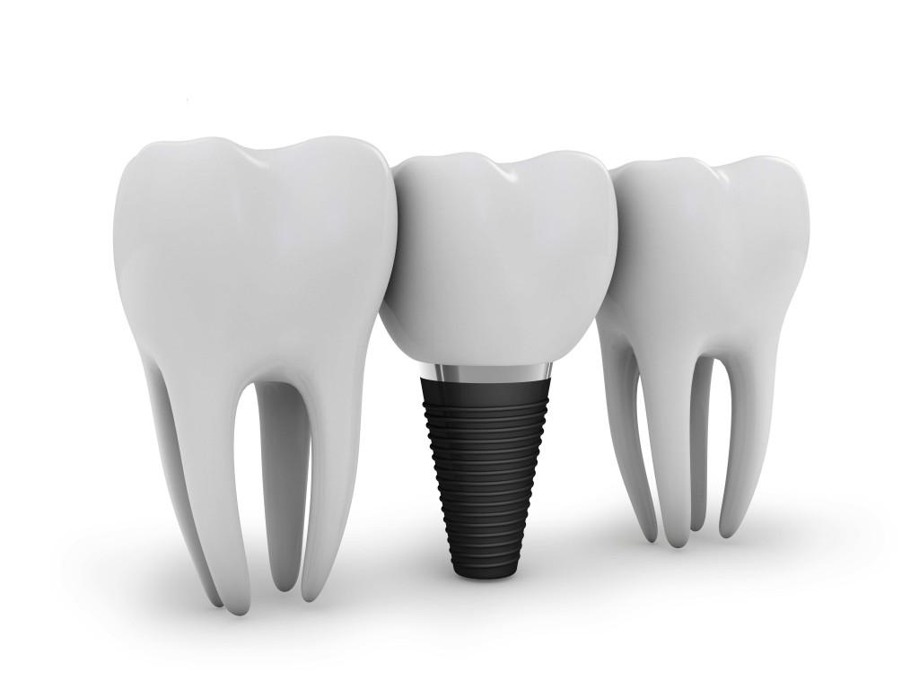Implant dentar Bacau